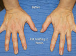 Fat Grafting for the Hands