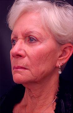 Facial Combination Procedure