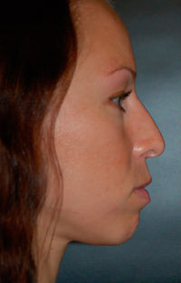 Facial Combination Procedure