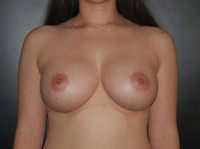 Breast Procedures After - Hilton Head