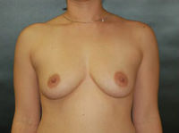 Breast Procedures Before - Hilton Head