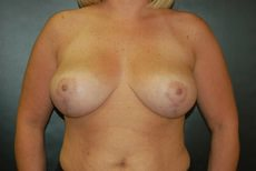 Breast Lift After - Hilton Head