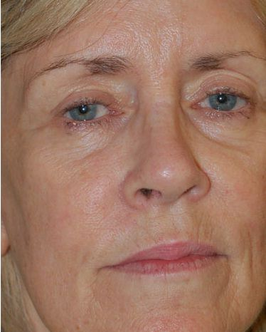 Facial Rejuvenation Before - Hilton Head