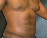 Liposuction After - Hilton Head