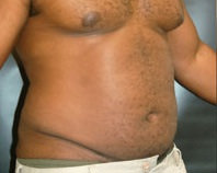 Liposuction Before - Hilton Head