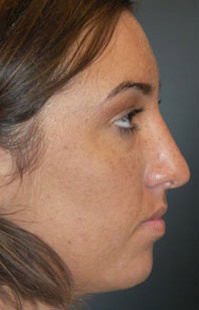 Rhinoplasty After - Hilton Head