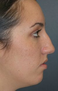 Rhinoplasty Before - Hilton Head