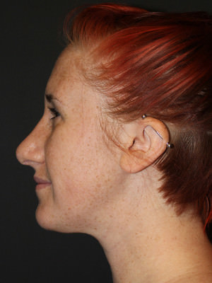 Rhinoplasty