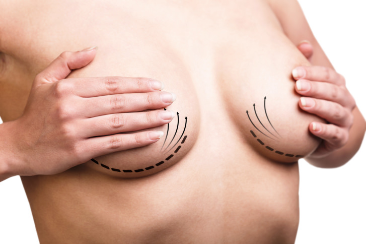 6a1f0a485fb80 Breast lift surgery is often confused with breast augmentation with breast  implants