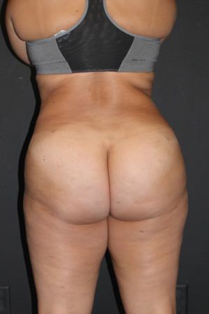 Brazilian Butt Lift