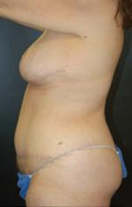 Body Combination Procedure