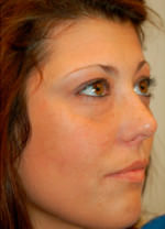 Fat Grafting to Face
